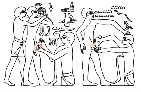 A hypothetical reconstruction of the relief found in an Egyptian tomb built for Ankhmabor in Saqqara dating to around 2400 BCE, had the Egyptians had the ShangRing. This image displays an Egyptian circumcision.
